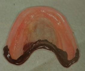 clinical complete denture prosthodontics pdf